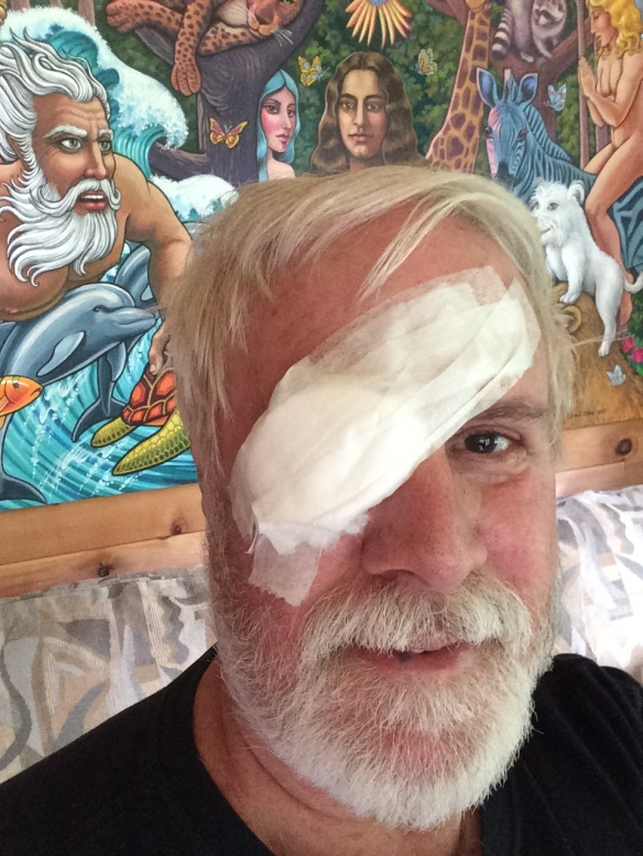 I was amazed to feel as good as I did 24 hours after my epiretinal membrane peel eye surgery. Minutes after taking this photo I removed the bandage. At first my vision was blurry, but three days after surgery I could see better than I did the day before surgery, and my eyesight will improve in coming weeks and months.